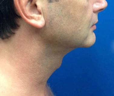 After-Perfect for a chin reduction
