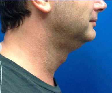Before-Perfect for a chin reduction