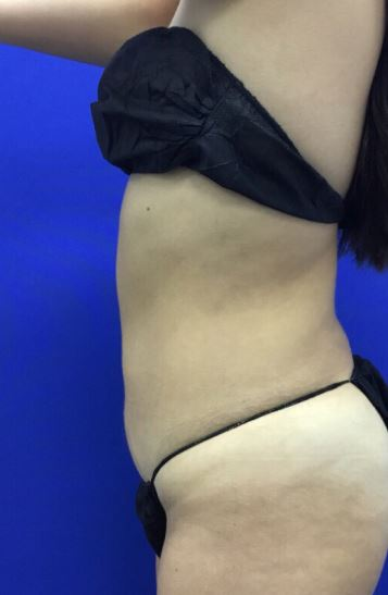 After-Perfect for a tummy tuck